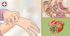 Infekcje pasożytnicze, to częsty i poważny problem.