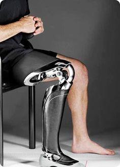 Present - Nix's robotic leg
