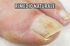 ADDIO ALLE INFEZIONI DI FUNGHI! Ecco 3 rimedi semplici e naturali per il trattamento dell'unghia del piede - Repubblica 24