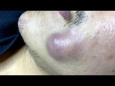 Big Pimples   Mụn Nhọt Siêu To - SacDepSpa#158 - YouTube Big Pimple, Beauty Skin, Hair Beauty, Floral Chair, Facial, Acne Treatment, Pimples, Youtube, Short Hair Styles