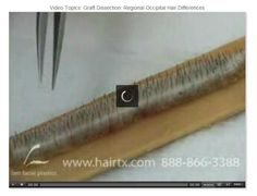 Graft Dissection: Regional Occipital Hair Differences  #HairTransplantVideo #hairtx #drsamlam #hairdisorders #GraftDissection