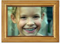Find the best orthodontist for adults near you, We offer complete you the best Diagnostic and Preventative Orthodontist, Invisible Dental Braces treatment For Adults here at Ivanov Orthodontic. Ministry Leadership, Leadership Articles, Youth Ministry, Kids Braces, Brace Face, Family Dentistry, Kids Church, Church Ideas, Dental