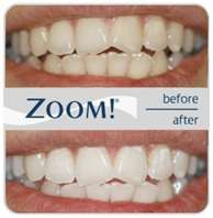 Contact Great Lakes Dental for general, family and cosmetic dentistry in Sarnia. We offer restorative and personalized dental services to boost your confidence. Zoom Teeth Whitening, Teeth Whitening Remedies, Natural Teeth Whitening, Homemade Beauty Recipes, Dental Care, Dental Teeth, Dental Floss, Dental Hygiene, Cosmetic Dentistry