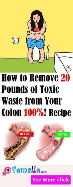 Remedies Colon How To Remove 20 Pounds Of Toxic Waste From Your Colon! - Way to Steal Healthy Health Diet, Health And Wellness, Health Fitness, Colon Health, Colon Detox, Health Book, Health Guru, Health Facts, Health Remedies