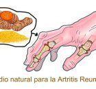Los Mejores 5 Remedios Naturales Para Combatir Definitivamente La Artritis Reumatoide. – Info Viral