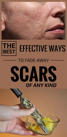 The Best Effective Ways To Fade Away Scars Of Any Kind