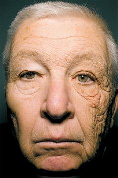 """Caso recém apresentado no site do """"The New England Journal of Medicine"""" O homem da foto dirigiu um caminhão de entregas por 28 anos, pegando sol no lado esquerdo do seu rosto diariamente e sem proteção."""