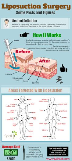 Liposuction before and after …. Liposuction before and after …. Liposuction before and after … – Hautpflege – Bbl Surgery, Before And After Liposuction, Lymphatic Drainage Massage, Exo, Mommy Makeover, Cosmetic Procedures, Weight Loss Blogs, Tummy Tucks, History