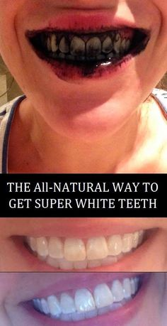 The natural way to get super white teeth right away