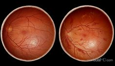 Healthy & Damaged Retina Comparison: The retina is the thin membrane that covers the back of the eye & contains specialized nerve cells that receive visual images from front of eye. These images are converted to nervous signals by the retina through the optic nerve to the brain for processing. The eyes are particularly susceptible to hypertension because high pressure can burst fragile capillaries & leak blood into the retina. In advanced cases, this can cause probs with vision & even…