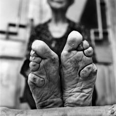 Status symbol: Once a symbol of beauty and status, foot binding, also known as lotus feet, was carried out in China since the 10th century, falling out of favour in the early 20th century before it was outlawed in 1911
