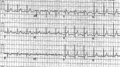 brugada syndrome | Brugada syndrome electrocardiographic examples of Type I Brugada ...