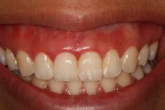 Don't hold back your smile, fix those receding gums / PicHelp