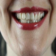 Teeth Health, Healthy Teeth, Dental Health, Crooked Teeth, The Smiths, Stained Teeth, Natural Teeth Whitening, Perfect Smile, Teeth Care