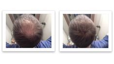 Watch This. Fuller Hair, Thinning Hair, Thin Hair, Hair Looks, Healthy Living, Watch, Easy, Projects