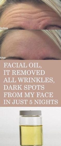 Amazing Facial Oil – It Remove Wrinkles and Dark Spots In Just 5 Nights. The amazing remedy we have for you today can remove wrinkles and dark spots from your face in only 5 nights! I didn't believe it was effective, but a friend. Black Spots On Face, Brown Spots On Hands, Dark Spots, Facial Brown Spots, Sun Spots On Skin, Beauty Skin, Health And Beauty, Beauty Box, Beauty Makeup