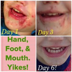 foot mouth disease treatment