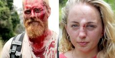 Couple beat off panga attack - This is how we live in South Africa.  White genocide under the watchful eye of the zuma government?