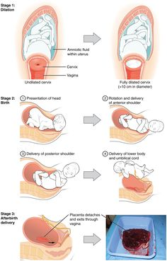 normal physiology in pregnancy - Google Search