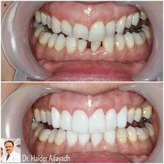 Gum Correction with Laser plus Emax Veneers for both up & down (front) by Dr. Haider Alfayadh, Cosmetic and Implantology Specialist  #qatar #ksa #kuwait #uae #emirates #dubai #oman #lebanon #germany #jordan #usa #bahrain #bahrainclinic #bahraindental #dental #dentalclinic #specialists #dentist #smile #cosmetic #emax #veneer #implantologist #dentalclinicbahrain #visityourdentist #dentistinbahrain #drhaideralfayadh