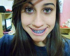 Braces Girls, Cute Braces, Orthodontic Appliances, Perfect Teeth, Teeth Braces, Beautiful Smile, Hair Beauty, Hot, Internet