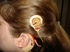 Cochlear Implant Decoration