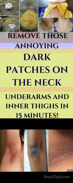 Prolonged exposure to bright sunlight or polluted air, aging or hormonal fluctuations may cause patchy skin darkening, making your skin look unhealthy. Dark skin around the neck is not really somet…