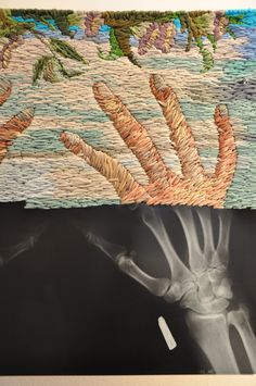 Embroidered X-Rays by Matthew Cox | http://inagblog.com/2015/12/matthew-cox/ | #embroidery #art