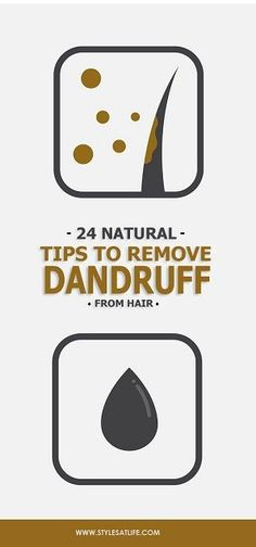 Balding Remedies Nowadays Dandruff is serious problem, it causes baldness and other infections. The given article help you to know about how to remove dandruff from hair permanently at home. Home Remedies For Dandruff, Hair Dandruff, Home Remedies For Hair, Natural Remedies, Hair Remedies, Teeth Whitening Remedies, Teeth Whitening System, Best Teeth Whitening, Hair