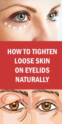 Loose skin can result quite unesthetic, especially on your face. Your eyelids can suffer too from the lack of elasticity. The market offers you various solutions to look better (Botox … Saggy Eyelids, Drooping Eyelids, Tighten Neck Skin, Tighten Stomach, Fitness Workouts, Serum, Face Tightening, Smooth Skin, Dry Skin