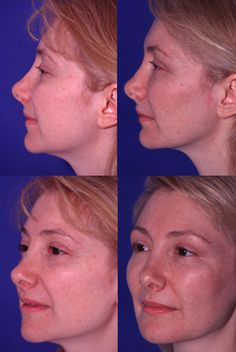 42 year old fat transfer brow, cheeks, lips and jaw line Curtis Perry MD www.asculptedyou.com