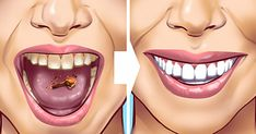 Tartar stains on your teeth can lead to several problematic issues resulting in weak teeth and even teeth loss in early age. Here are 10 helpful and proven natural remedies to get those ugly tartar stains removed from your teeth. Detox Drink Before Bed, Drinks Before Bed, Baking Soda Benefits, Remover Manchas, Fat Burning Detox Drinks, Natural Teeth Whitening, Teeth Care, Lemon Essential Oils, Detox Drinks