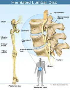 Back problems contributing to Nerve Pain