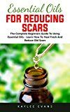 Free Kindle Book -   Essential Oils For Reducing Scars: The Complete Beginner's Guide To Using Essential Oils - Learn How To Heal Fresh And Reduce Old Scars Check more at http://www.free-kindle-books-4u.com/health-fitness-dietingfree-essential-oils-for-reducing-scars-the-complete-beginners-guide-to-using-essential-oils-learn-how-to-heal-fresh-and-reduce-old-scars/