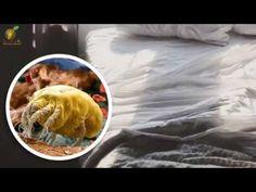 ¿Sabía usted que en nuestro colchón se esconden miles de ácaros? No dejes pasar por alto!!