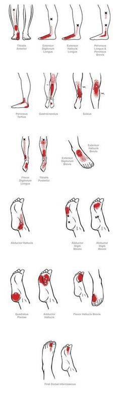 , Trigger Point Referral Pain Patterns for the Ankle & Foot Myofascial pain (muscle pain) can result from sprains or strains of a joint, e. Trigger Point Therapy, Massage Techniques, Trigger Points, Muscle Pain, Massage Therapy, Physical Therapy, Back Pain, Healing, Medical