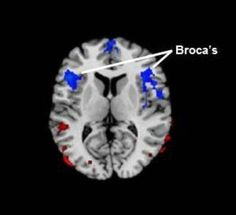 A new study demonstrates that regional cerebral blood flow is reduced in the Broca's area -- the region in the frontal lobe of the brain linked to speech production -- in persons who stutter. More severe stuttering is associated with even greater reductions in blood flow to this region.
