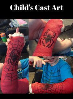 No one likes breaking or fracturing a bone, but when you've finally got that heavy and uncomfortable cast on, there's no reason not to have a bit of creative. Broken Arm Cast, Broken Wrist, Spiderman Cast, Spiderman Drawing, Drawing For Kids, Art For Kids, Kids Cast, Leg Cast, Cast Art