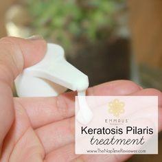 Keratosis Pilaris Treatment Products Keratosis Pilaris Treatment | Emmaus Beauty Products