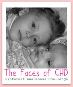 Please visit The Faces of CHD board to increase your awareness of the #1 birth defect: Congenital Heart Defects.  Support those with CHDs by repinning their stories.