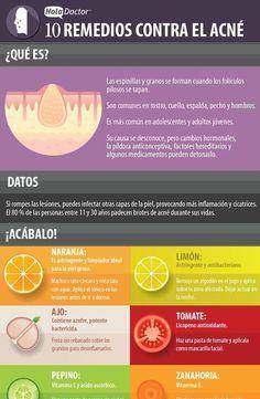 10 remedios caseros contra el acné