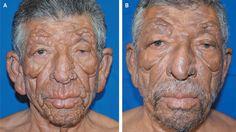 Leonine Facies: Lepromatous Leprosy — NEJM