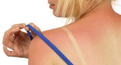 Sunburn Relief...I'm sure I'll need to remember this sometime this summer!