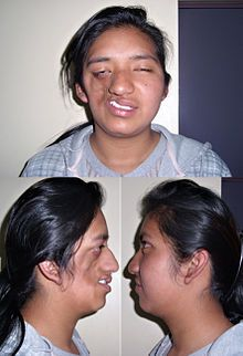 Parry-Romberg Syndrome: rare neurocutaneous syndrome characterized by progressive shrinkage and degeneration of tissues beneath the skin, on one side of the face (hemifacial atrophy) but occasionally extending to other parts of the body. An autoimmune mechanism is suspected. Syndrome may be a variant of localized scleroderma, but precise etiology and pathogenesis of this acquired disorder remains unknown. Syndrome has a higher prevalence in females; typically appears between 5 – 15 years of…