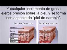 Eliminar La Celulitis - Eliminar celulitis de piernas y glúteos