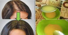 This simple remedy helps your hair growth! This simple remedy helps your hair growth! Beauty Care, Beauty Hacks, Hair Beauty, Beauty Tips, Beauty Ideas, Natural Treatments, Natural Remedies, Hair Treatments, Herbal Remedies