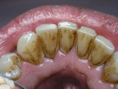 How to remove tartar and plaque from your teeth at home, without having to go to the dentist ... Natural methods to get rid of plaque ...