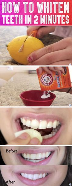 Whiten Your Teeth In 2 Minutes