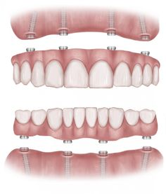Numerous advertisements are promoting affordable dental implant treatment to replace teeth in one day with only four implants. Description from thedentalimplantguide.org. I searched for this on bing.com/images