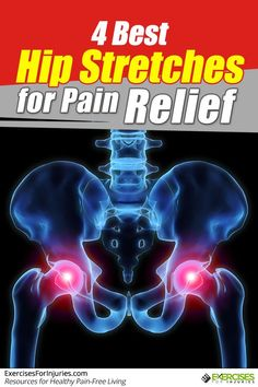 Suffering from chronic hip pain? These 4 hip stretches can help for hip pain relief! Best Hip Stretches, Back Pain Exercises, Sciatica Exercises, Face Exercises, Knee Arthritis, Fibromyalgia, Hip Pain Relief, Bursitis Hip, Health Tips